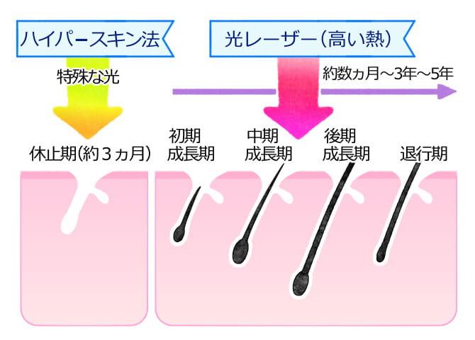 ハイパースキン法の解説図