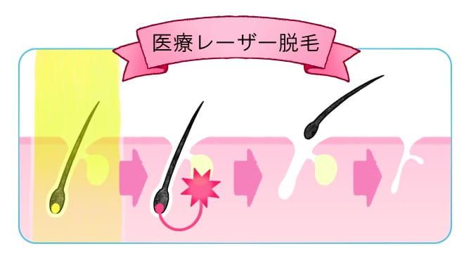 KM新宿クリニックの乳輪脱毛