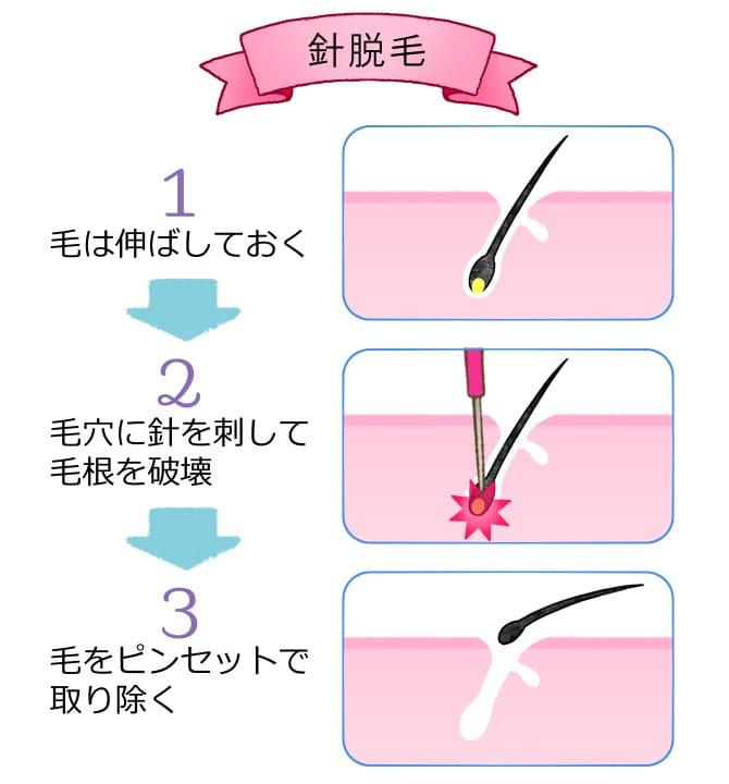ニードル脱毛解説図
