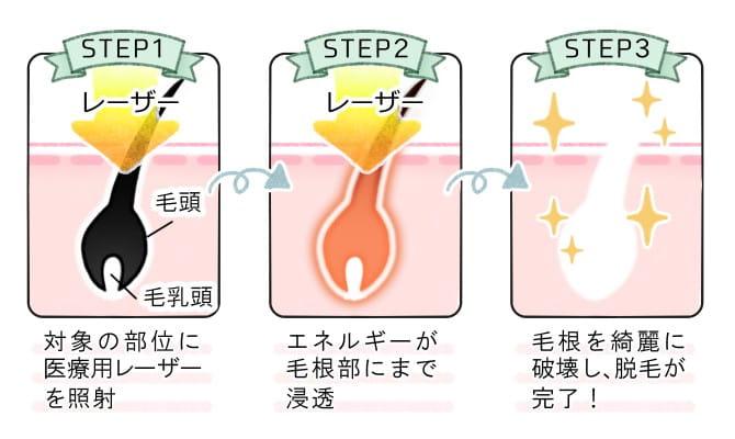 医療用レーザーの解説図