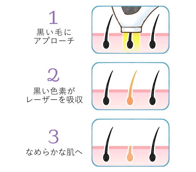 レーザーの熱で脱毛する仕組み