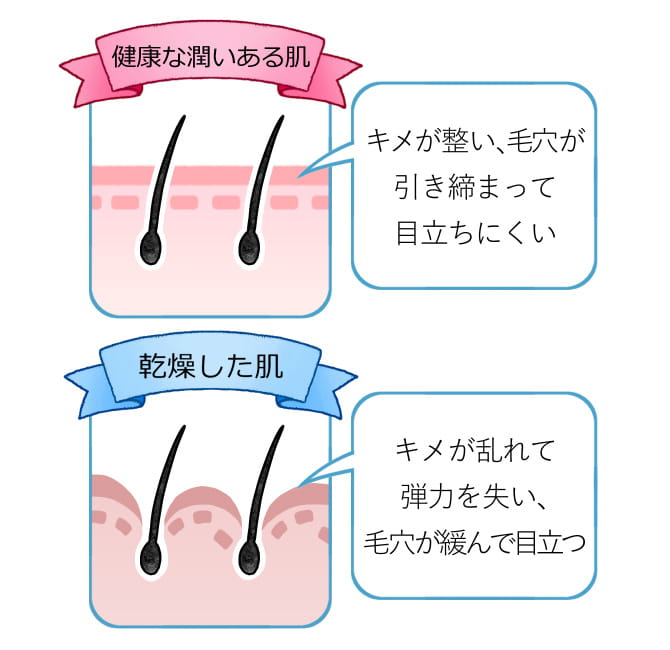 毛穴が目立つ肌と毛穴が目立つ肌との違い