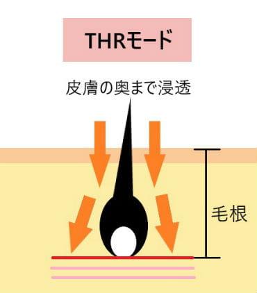 THR(サーモヒートリムーバー)