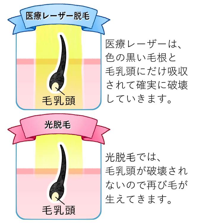 クリニックの医療レーザー脱毛とサロンの光脱毛の違い
