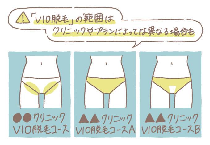 VIO脱毛プランの設定範囲の違い